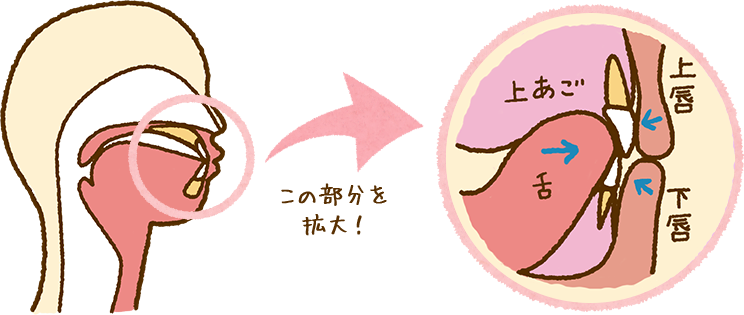 舌の力による矯正