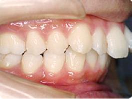 出っ歯の状態